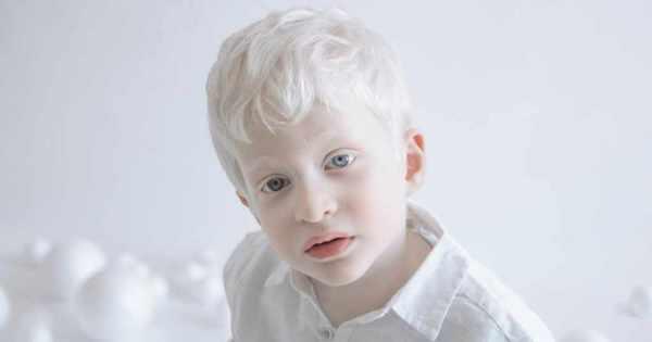 高画質・画像!美し過ぎるアルビノの子供!