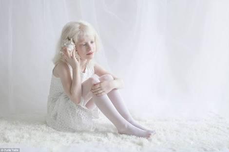 高画質・画像!白い世界のアルビノ美少女!
